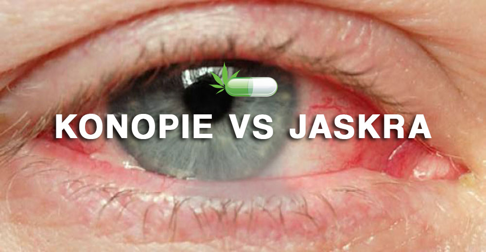 Terapia Marihuaną w Leczeniu Jaskry, jamaica.com.pl